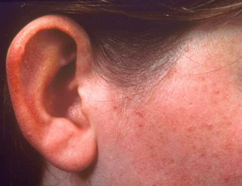 Images of Adult Acne & effective treatments - Acne-Ltd III